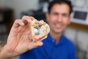 הרכבת שיני טיטנים וזהב במעבדת שיניים (1)